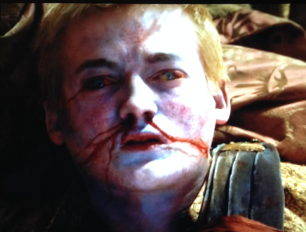 dead joffrey